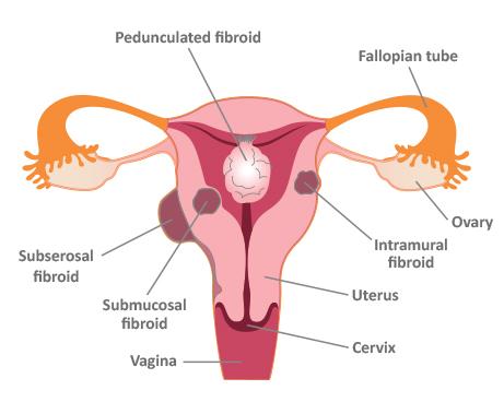 Uterine Fibroids